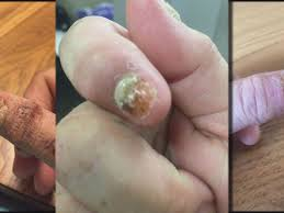 staff levels leave some minn nail salons uninspected kare11 com
