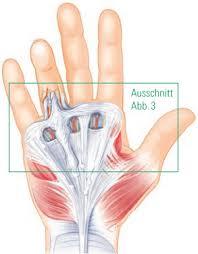 knoten handinnenfläche dupuytren dupuytren sche erkrankung