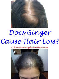 what causes hair loss in women over 50 best 25 sudden hair loss ideas on pinterest will hair loss grow