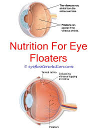 bright flashes of light in eye eye floaters bright light flashes big eye floaters cure floaters