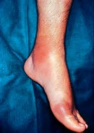 good food for gout diet read more articles guides doctor advices