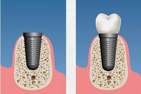 guided bone regeneration guided tissue regeneration implantodent