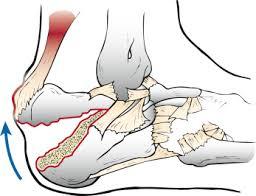 Os Calcaneus Calcaneus Fractures A Possible Musculoskeletal Emergency