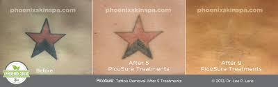 picosure tattoo removal u2013 phoenix skin spa