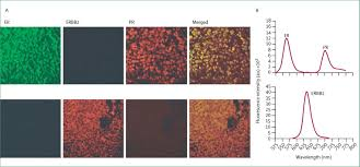 emerging use of nanoparticles in diagnosis and treatment of breast