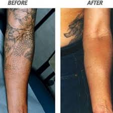tattoo removal cost estimation tattoo removal cost estimation