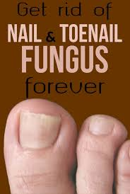 yellow nails toe nail fungus treatment best 25 fungal toenail infection ideas on pinterest fungus in