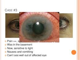 eye pain from light the red and painful eye