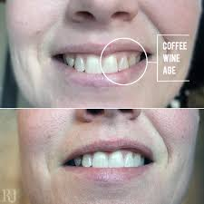 crest 3d white whitestrips with light teeth whitening kit free your smile with crest 3d whitestrips 1 hour express momskoop