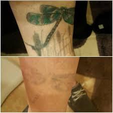 25 einzigartige picosure tattoo entfernung ideen auf pinterest