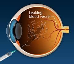The Blind Spot In The Eye Is Due To Macular Degeneration Treatment Fda Approved Options