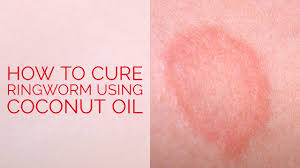 How To Get Rid Of Bed Sores How To Cure Ringworm Using Coconut Oil