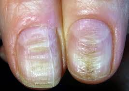 12 gross reasons to stop biting your nails today simplemost