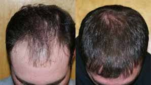 how thick is 1000 hair graft artas robotic hair transplant most advanced fue