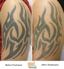 12 best tattoo removal images on pinterest tattoo removal laser