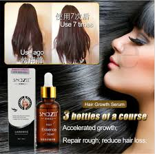 Hair Loss Cure For Women Argan Oil Hair Loss Om Hair