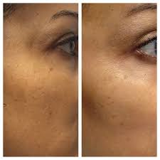 laser pigmentation removal before and after photos raleigh nc