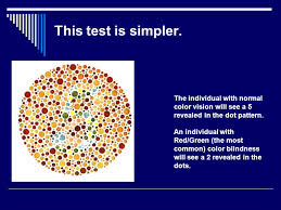 Most Common Colour Blindness A1 The Eye And Sight Ppt Online Download