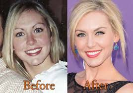 why did jesicarobertson cut her hair jessica robertson plastic surgery before and after botox pictures