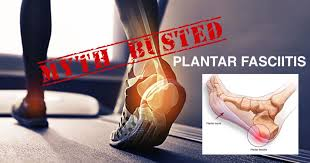 Planters Fasciitis Surgery by Plantar Fasciitis Treatment Myths Exposed Dr Mike Smith Surgeon