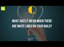 what does it mean when there are white lines on your nails youtube