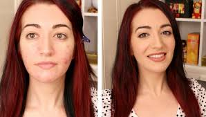 my best everyday makeup routine for oily u0026 acne prone skin