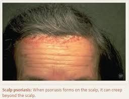 light treatment for scalp psoriasis blog beverly dermatology laser center