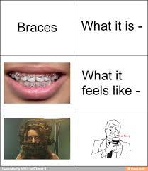 Braces Meme - braces meme ifunny