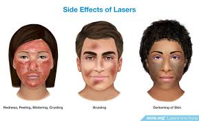 blue light for acne side effects do lasers work to clear acne acne org