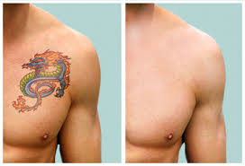 laser tattoo removal aguileon health tech