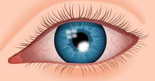 Diseases Of The Eye That Cause Blindness Corneal Ulcer Symptoms Causes And Treatments Allaboutvision Com