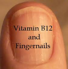 b12 and fingernails health boundaries