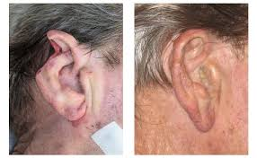 cancer of the ear cartilage skin cancer surgery gary r culbertson md facs sumter south