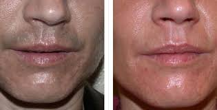 how much does laser hair removal cost on back laser hair removal before and after photos usha rajagopal md
