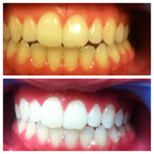 Dentist That Do Teeth Whitening Amarillo Globe News Amarillo Daily Deals 149 For 3 Back To