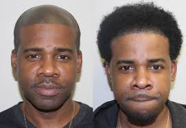 hairline restoration for black men african american hair transplant testimonials reviews about dr