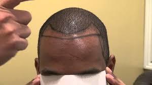 hairline restoration for black men black man hair transplant surgery creating hairline density dr