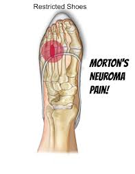 My Knee Hurts When I Go Down Stairs by Morton U0027s Neuroma Self Help Tips Treatment And Prevention From