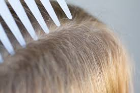 how to clean hair brushes u0026 lice healthfully