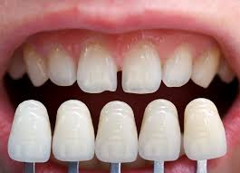 Best Way To Whiten Teeth At Home Fountain Square Cosmetic Dental Group Glen Meyer Dds U0026 Andrew