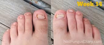 nail fungus update april 2015 nail fungus diary