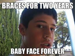 Baby Face Meme - braces for two years baby face forever baby face college student
