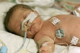 viagra being given to premature babies in new clinical trial