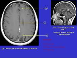 Brain Mri Anatomy Mri Brain Anatomy Dr Muhammad Bin Zulfiqar