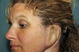 cancer of the ear cartilage replacement ear grows on cancer patient s arm ny daily news