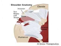 Tendons In The Shoulder Diagram Rotator Cuff Tear Information Sinew Therapeutics
