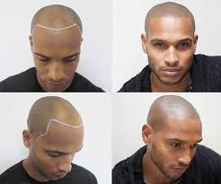 hair tattoo scalp micropigmentation men u0027s hairstyles