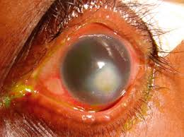 Diseases Of The Eye That Cause Blindness Community Eye Health Journal Corneal Blindness Prevention