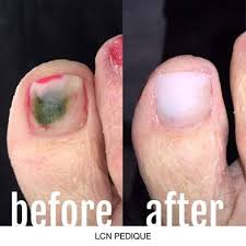 the ultimate solution to problematic nails lcn