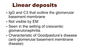 renal pathology nephrotic and nephritic syndromes john higgins
